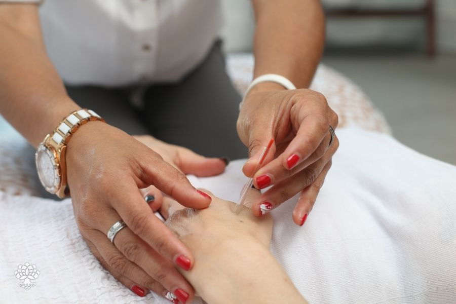 benefícios acupuntura